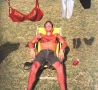 Funny Pictures - Embarrassing Sunburn